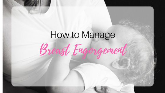 how to manage breast engorgement